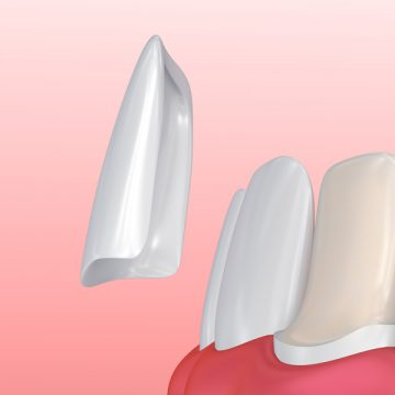 Transform Your Smile with Dental Veneers